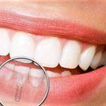 Les différents types d'implants dentaires !