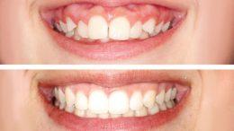 Retrouvez le sourire avec les facettes dentaires