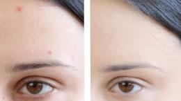 maquillage des boutons sur le visage