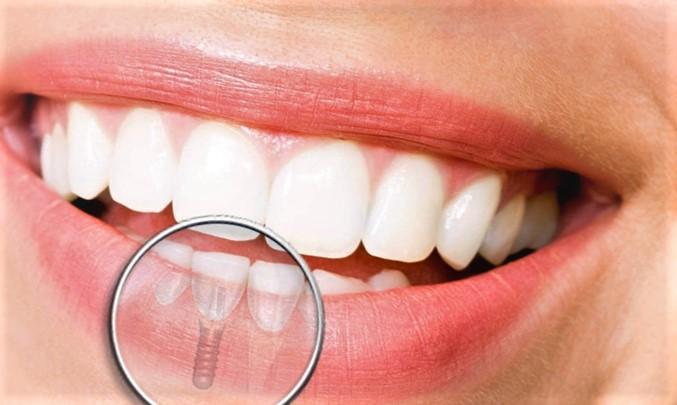 Les différents types d'implants dentaires